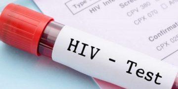 HIV là gì? Con đường lây nhiễm và triệu chứng bệnh thường gặp