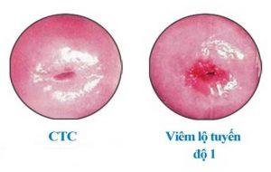 Viêm lộ tuyến cổ tử cung độ 1