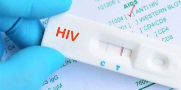 Khi nào cần test HIV sớm?